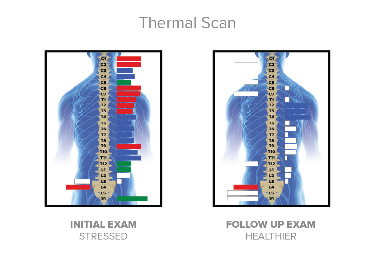 Thermal-Scan-1